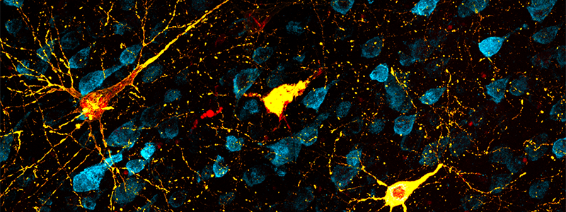 Confocal microscopy showing pyramidal neurons in the temporal sulcus with different degrees of tau pathology in the rhesus macaque brain. Accumulation of tau protein leads to the development of neurofibrillary tangles in the brain